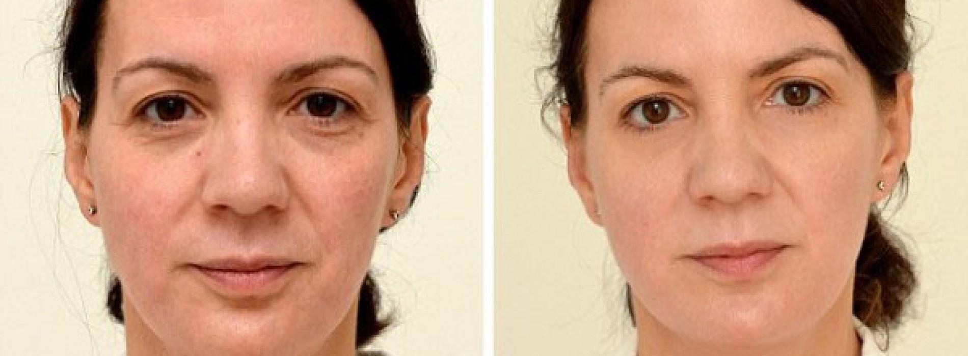 Deze vrouw drinkt 4 weken lang 3 liter water per dag. Het resultaat is waanzinnig!