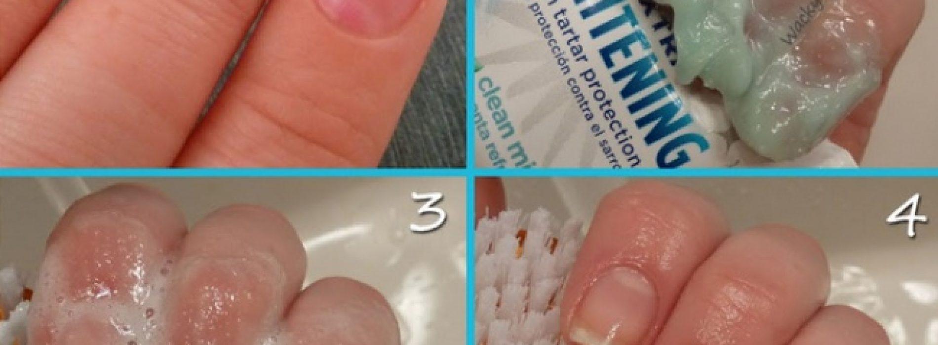 Als je tandpasta op je vingernagels smeert, volgt er een VERRASSEND effect!