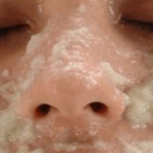 Dit veegt de donkere plekken op u gezicht weg al na het tweede Gebruik!
