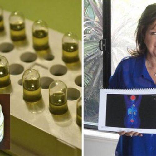 Kijken en delen! Vrouw Combineert kokosolie en Cannabis Olie en verslaat kanker!