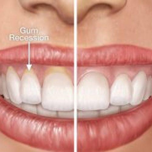 Last van teruggetrokken tandvlees? Met DIT natuurlijke middel los je dit op!