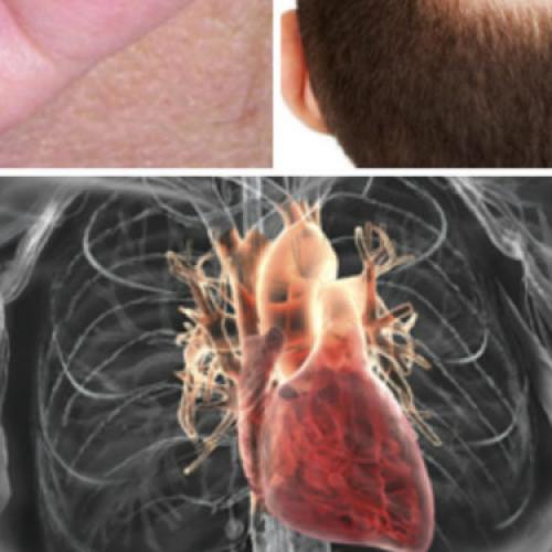 Heb je wel eens last van één van deze vier vage symptomen? DIT kan duiden op verstopte aderen!