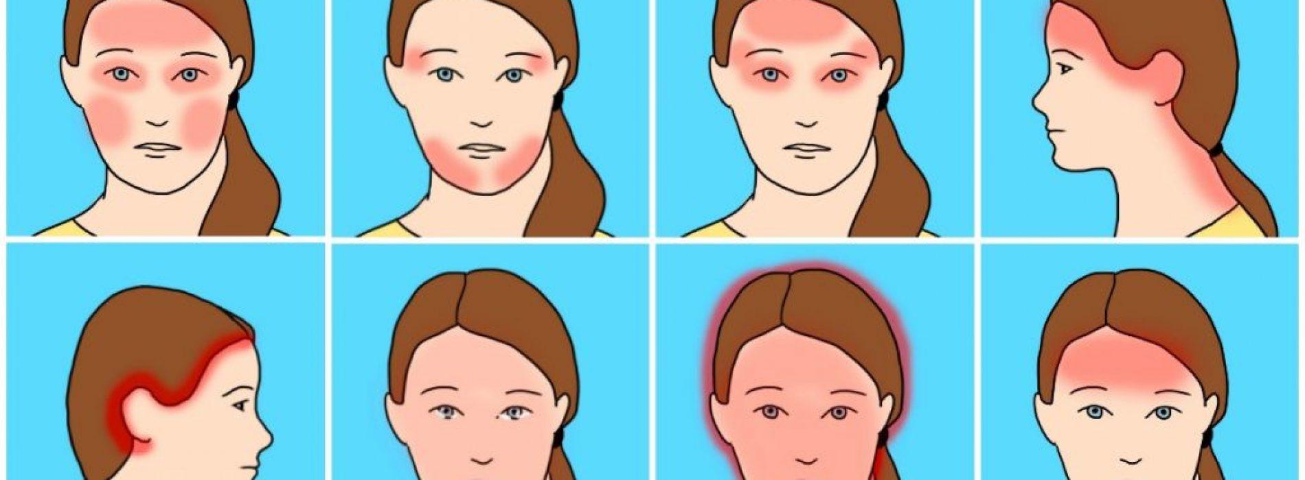 10 algemeen voorkomende soorten hoofdpijn en hun verrassende oorzaken