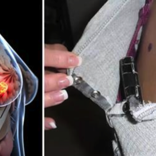 Artsen waarschuwen: draag je mobiele telefoon niet op je lichaam. Dit is de reden waarom!