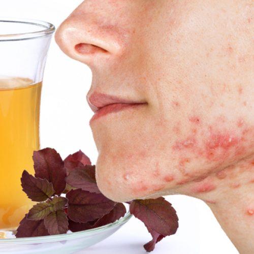 Drink deze thee om cortisolgehaltes te verlagen, acne een halt toe te roepen en angsten te verminderen!