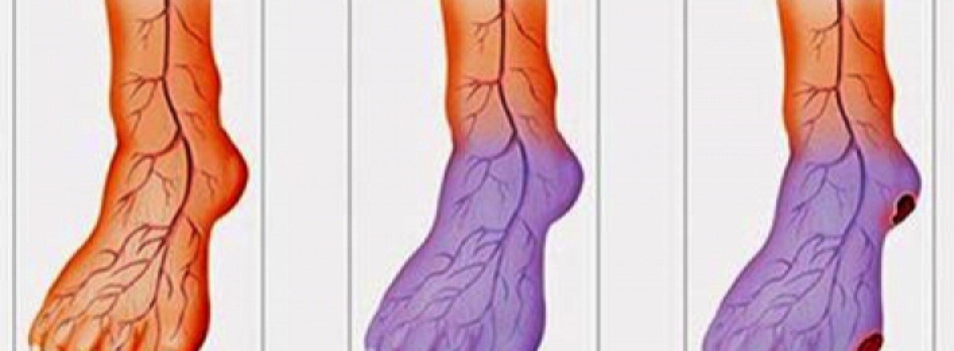 Deze tips verbeteren je bloedsomloop! Je zult je heel snel beter voelen!