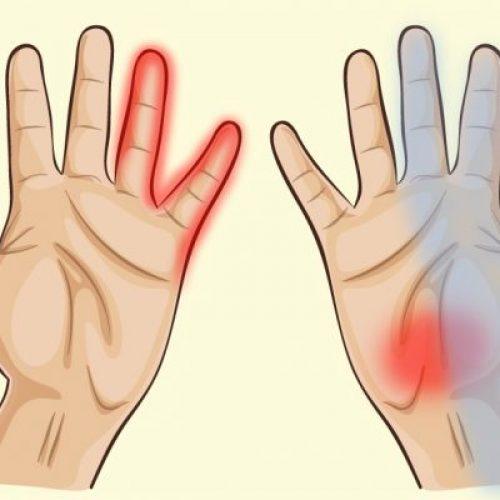 Je handen kunnen je veel over je gezondheid verraden! Wist ik dit maar eerder!