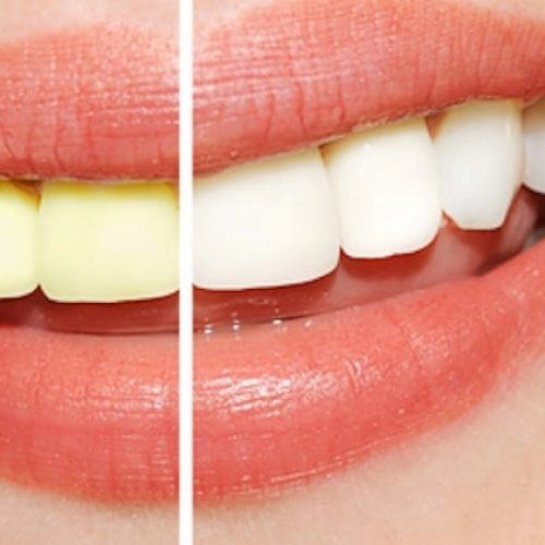 Een stralende witte lach zonder je tanden te bleken? Met DEZE tips gaat dat lukken!