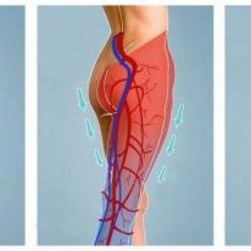 Deze tips verbeteren je bloedsomloop! Je zult je een stuk beter voelen!