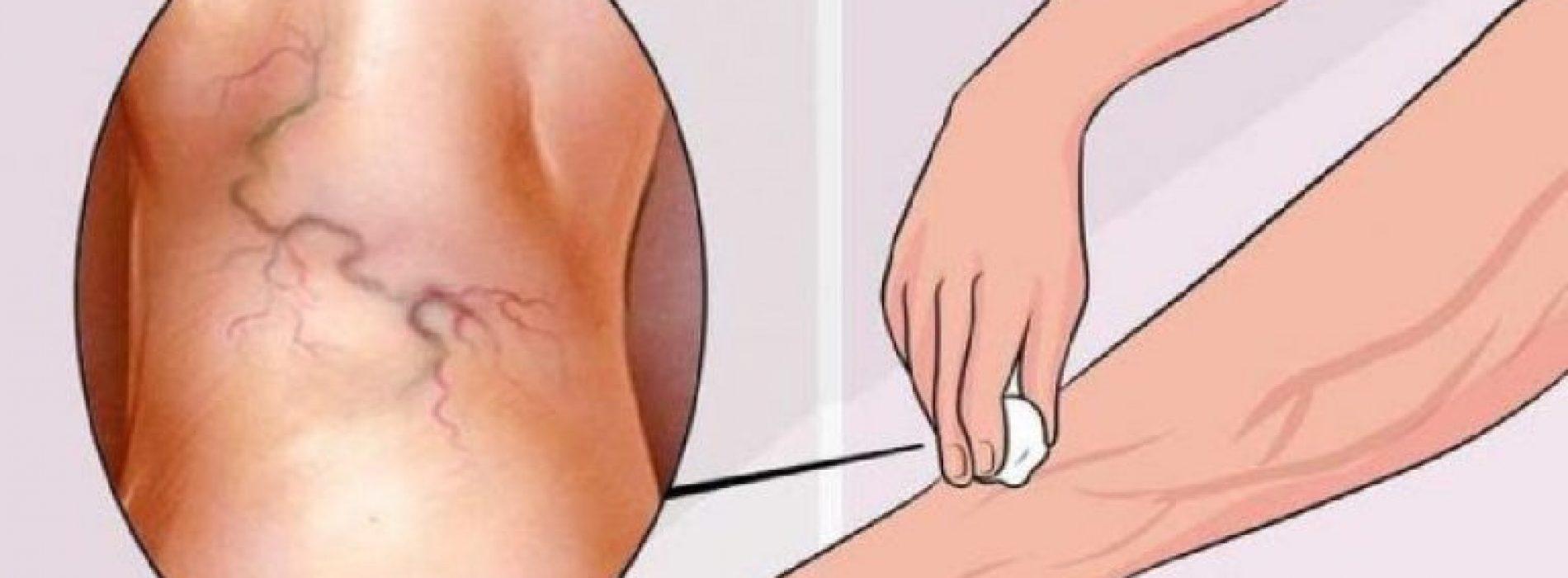 Last van spataderen? Dit is DE makkelijkste oplossing met natuurlijke middeltjes!
