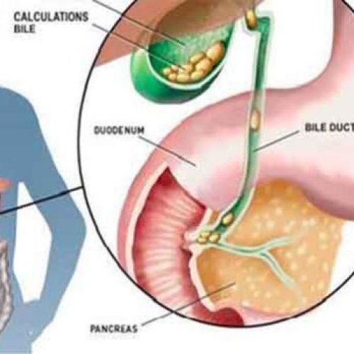 Kanker is nooit de eerste ziekte, voordat kanker verschijnt, gebeurt het volgende: Een oude methode om het te voorkomen