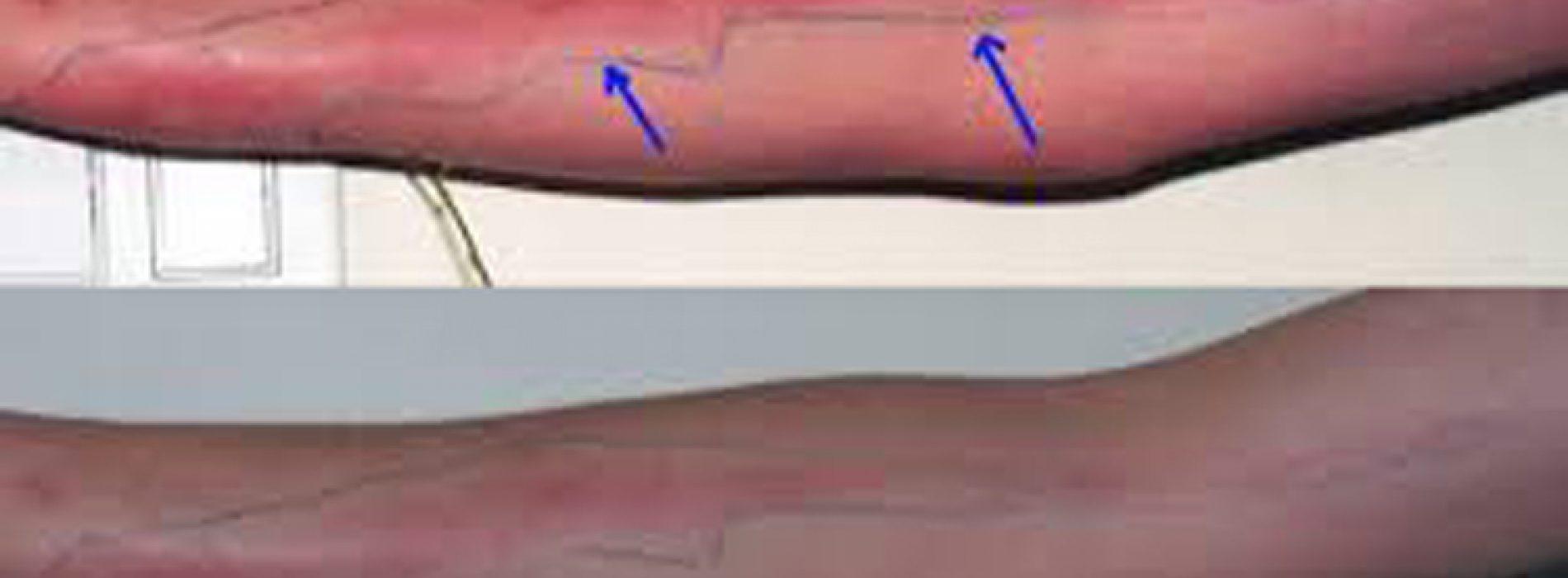 8 tekenen die kunnen wijzen op interne bloedstolling.