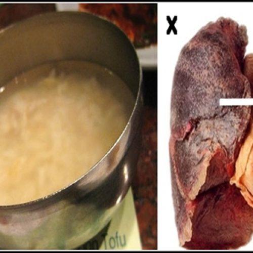 Stop nu met roken en zuiver je longen met dit geweldige recept!