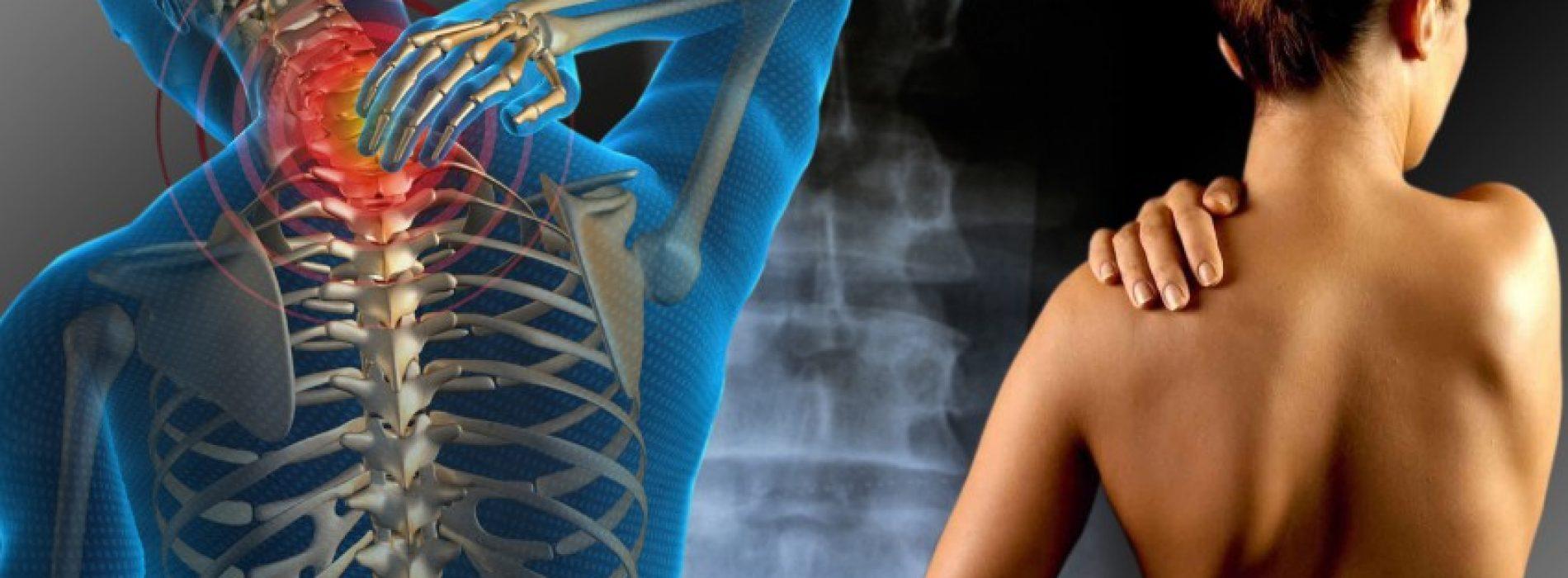 Fibromyalgie patiënten hebben lagere botdichtheid