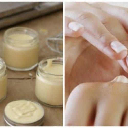 Vaak droge handen? Op deze natuurlijke manier kun je het zelf behandelen!