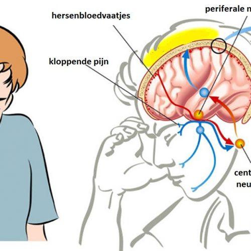 Hoofdpijn stopt direct met het gebruik van dit wonder middeltje.. Dit had ik eerder willen weten!