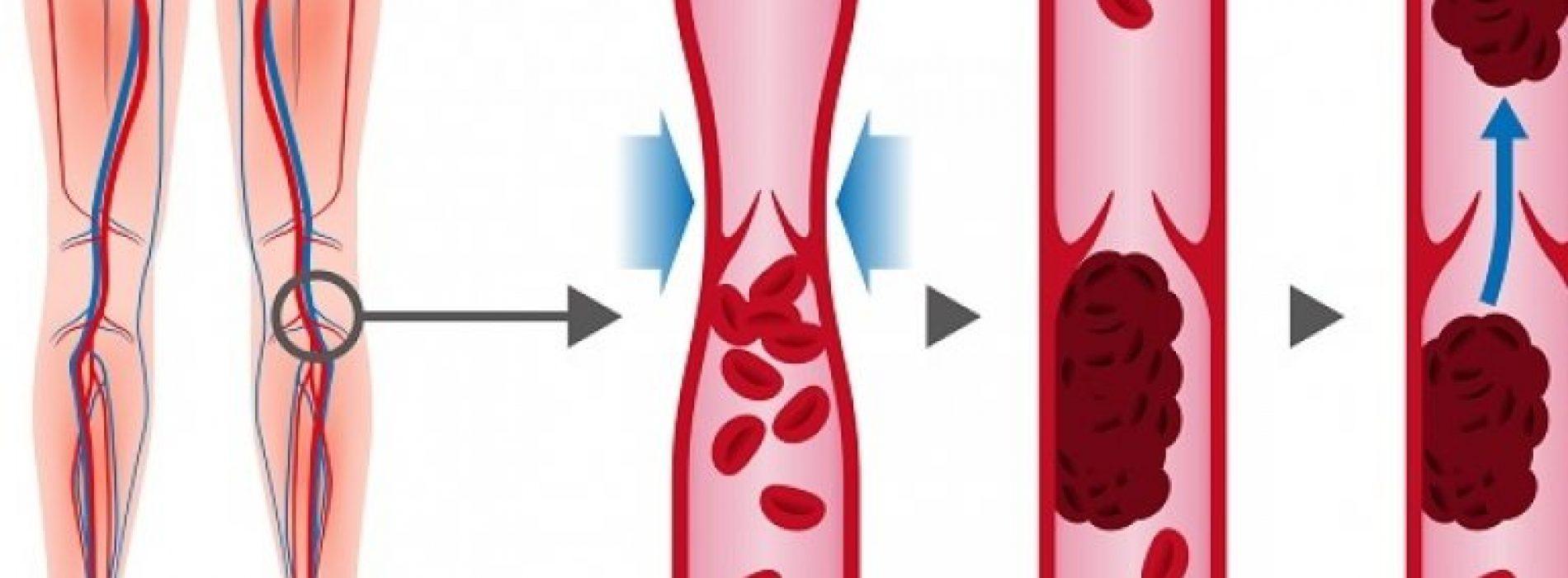 Hier zijn 7 signalen dat  U geblokkeerde slagaders heeft