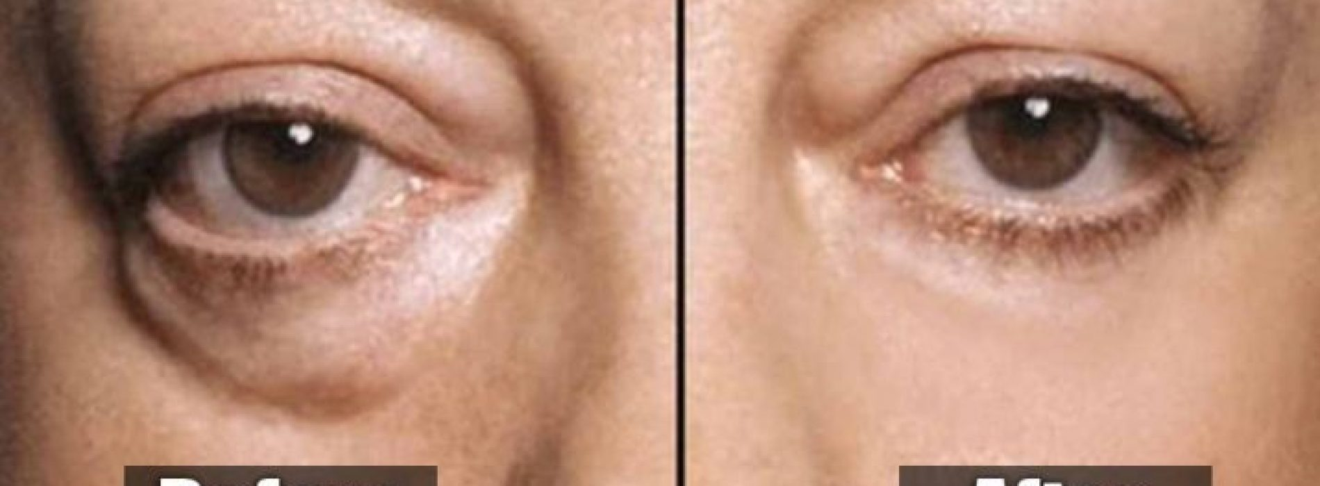 Breng Baking Soda aan onder uw ogen … 5 minuten later … U zult versteld staan!