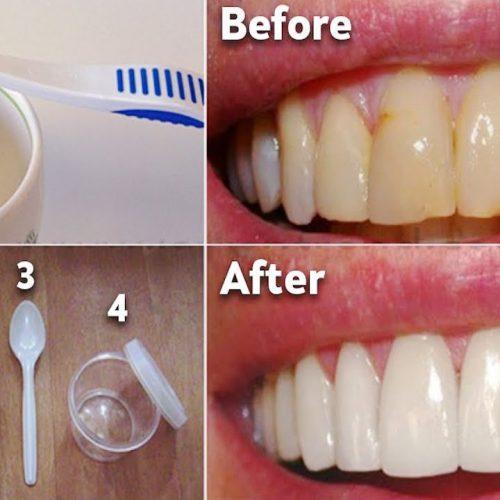 Dit mondwater verwijdert tandplak van tanden in 2 minuten