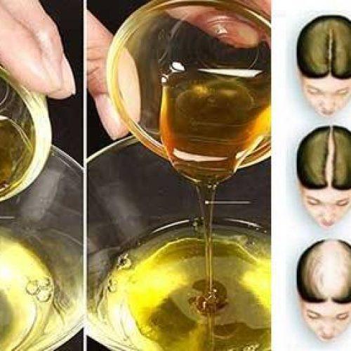 Masseer je hoofdhuid met deze ayurvedische olie, je zult hierna nooit meer één haar verliezen