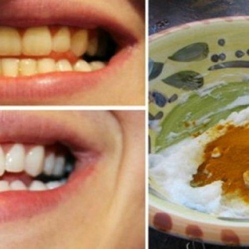 Poets je tanden met dit mengsel en zeg vaarwel tegen tandsteen en cariës voor altijd!
