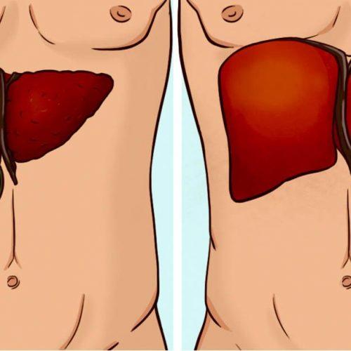 Hoe leverfalen te herkennen en wat te doen om het te behandelen
