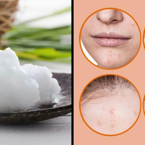 Hoe je gezicht te wassen en vaarwel tegen hangende gezichtshuid en rimpels te zeggen