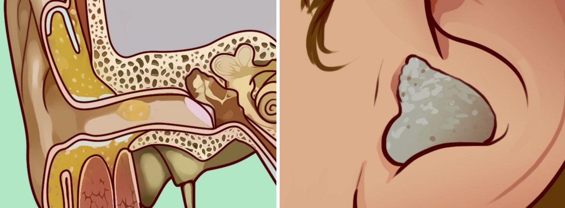 Leg dat wattenstaafje neer. Hier zijn 8 veilige en eenvoudige manieren om oorsmeeropbouw te verwijderen
