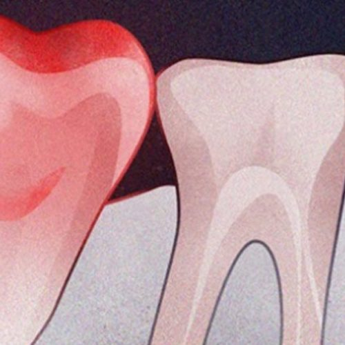 10 tekenen van een toxische tandinfectie en hoe deze thuis te behandelen