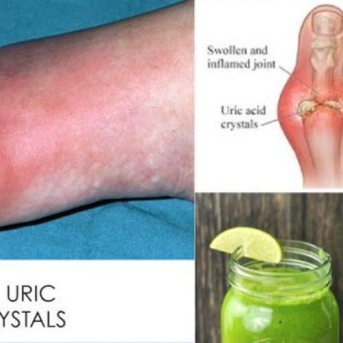 Hoe u snel urinezuurkristallisatie uit uw lichaam verwijdert om jicht en gewrichtspijn te voorkomen