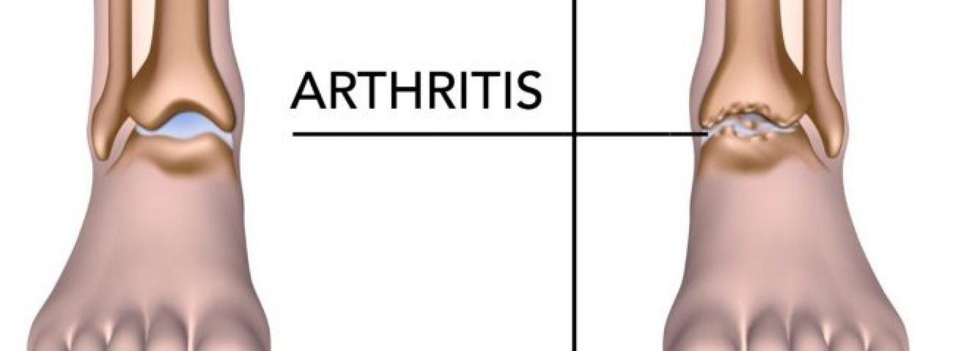 5 voedingsmiddelen die artritispijn helpen verminderen