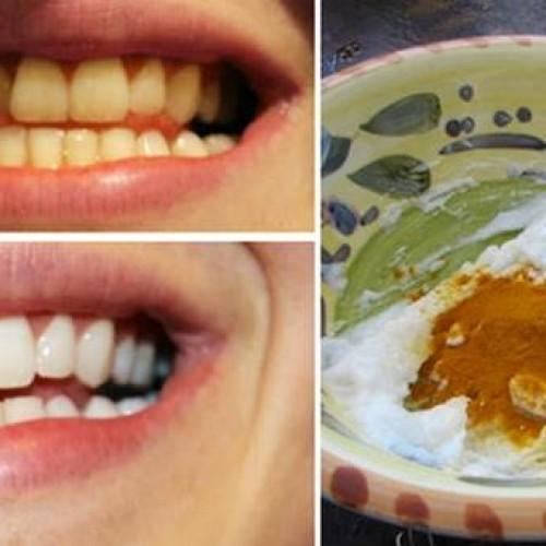 Je hoeft slechts een paar kruiden door je tandpasta te doen voor DIT resultaat!