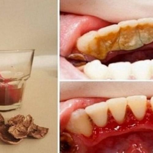 Tandplak, tandsteen en bloedend tandvlees behoren tot het verleden dankzij walnoten, GEWELDIG!