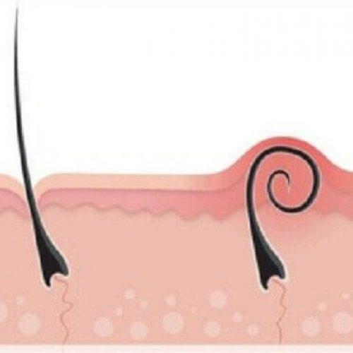 Dit zijn 7 tips om af te rekenen met die pijnlijke ingegroeide haren!
