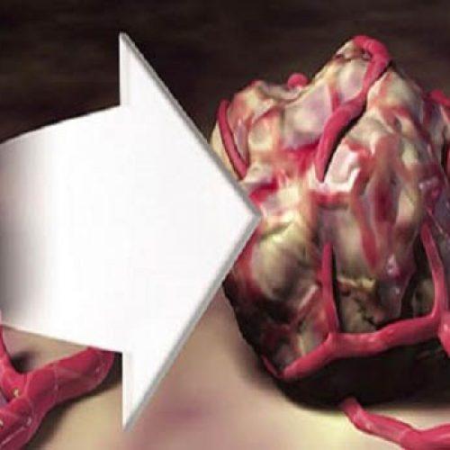 Verwijder deze voedingsmiddelen uit je dieet om kankercellen uit te hongeren