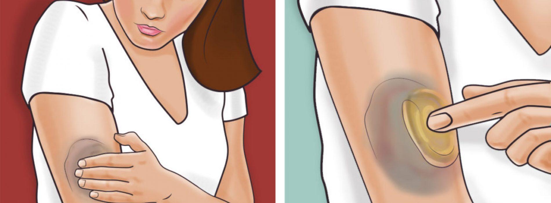 Studie heeft aangetoond dat als kurkuma op de huid aangebracht wordt, het DIT effect op je lichaam heeft. Ongelooflijk!