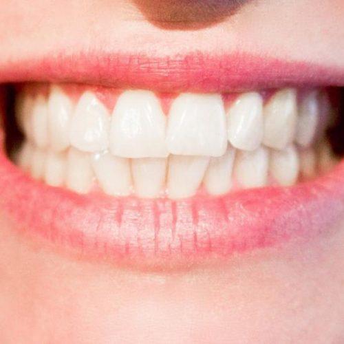 Oil pulling: zelf gaatjes in je tanden voorkomen