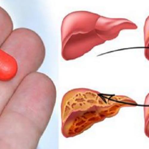 Artsen waarschuwen: dit alledaagse medicijn verwoest je lever!