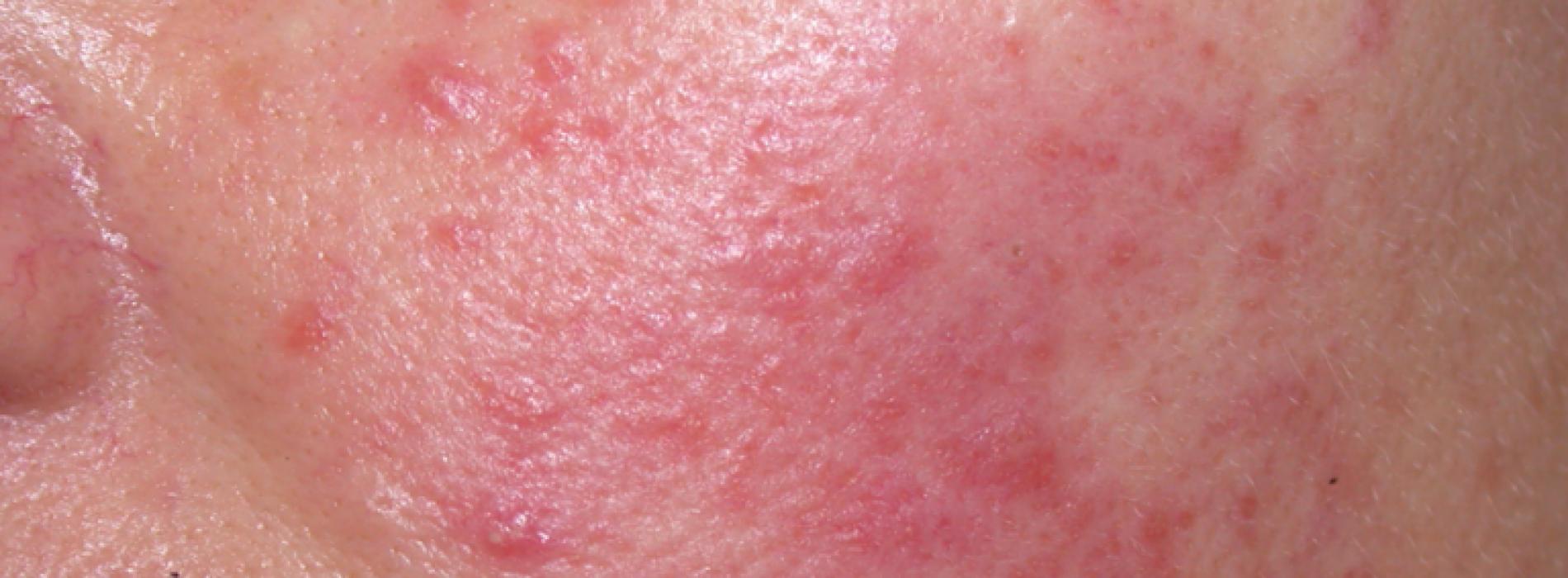 Deze natuurlijke remedies helpen tegen een rode huid (rosacea)!