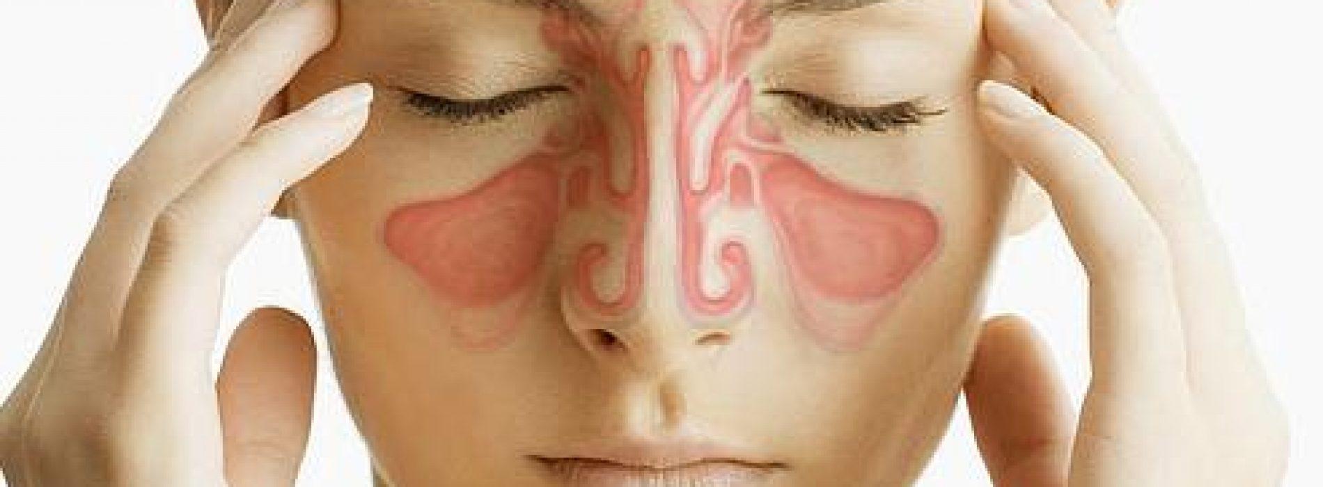 Met dit natuurlijke middeltje zal je voorhoofdholte ontsteking heel snel verdwijnen!