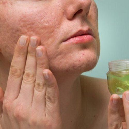 3 zelfgemaakte middeltjes om huidaandoeningen te behandelen