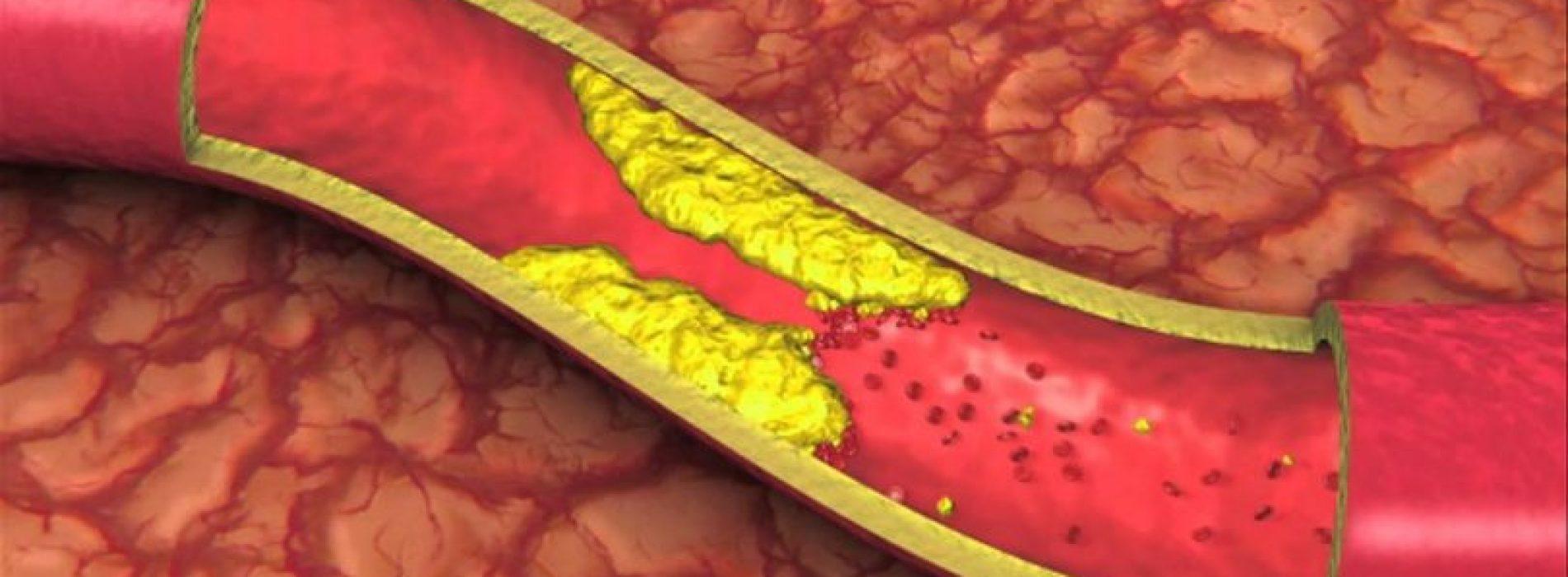 Zeg vaarwel tegen een hoge bloeddruk en cholesterol door het drinken van DIT drankje