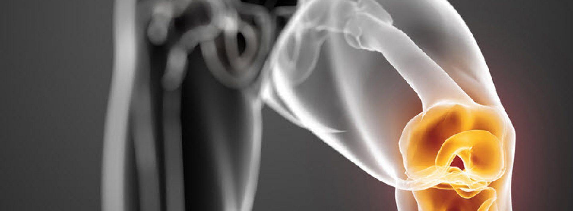 Vernieuw je knieën en gewrichten met dit recept – Artsen zijn verbaasd!