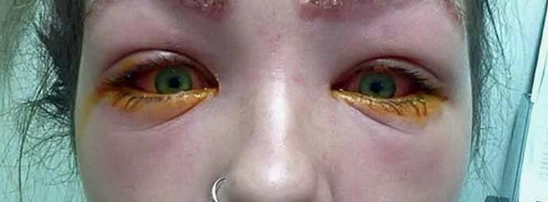 Ze werd 's ochtends wakker en er liep pus uit haar ogen. De oorzaak ligt bij een simpel product van de drogist.