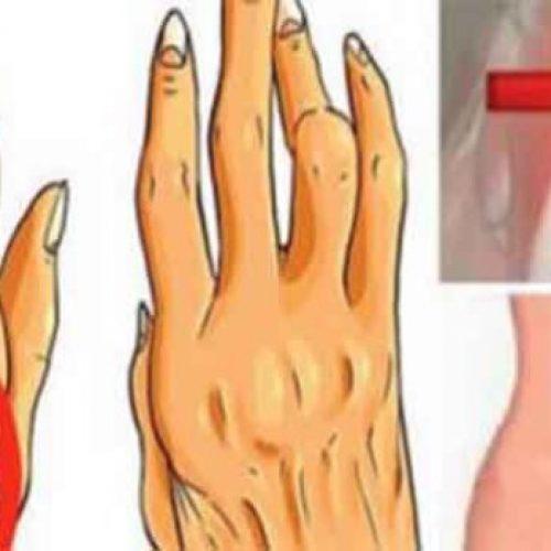 Dit onbekende simpele trucje werkt veel beter tegen artritis, ischias en rugpijn dan pillen