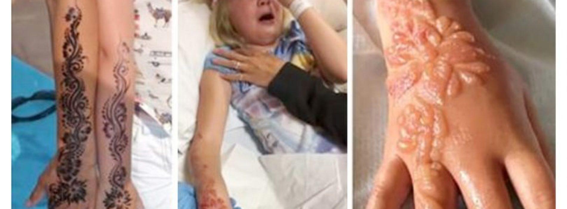 Op vakantie zet ze een zwarte henna tatoeage – Even later gebeurde het ondenkbare…