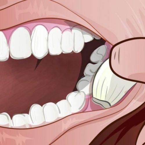 Met DEZE tip hoef je niet meer rond te lopen met tandpijn!