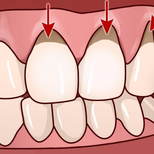 10 eenvoudige huismiddeltjes om tandvleesontsteking te helpen verlichten