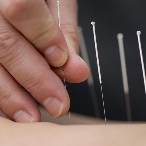 Acupunctuur gevonden om de mobiliteit te verbeteren bij mensen met artrose van de knie