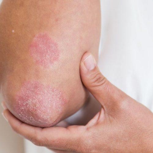 Honing en kurkuma: het enige effectieve mengsel dat psoriasis geneest met een hogere snelheid